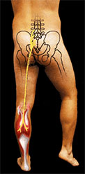 Sciatica -  Dr. Michael A. Schwartz—Dr. Mike the Chiropractor