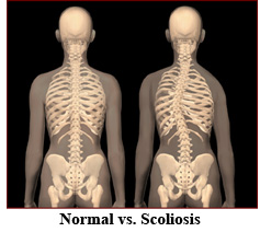 normal and scoliosis pic