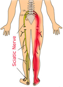 sciatic-nerve21