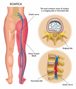 sciatica+sciatic+pain+treatment