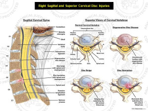 Right Sagittal and Superior Cervical Disc Injuries